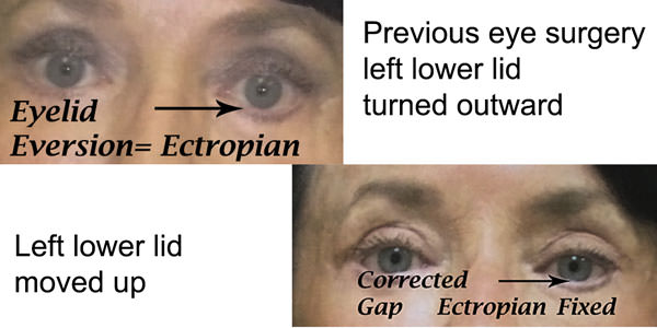 ectropian_correction