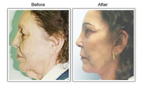 Facelift Honolulu Hawaii