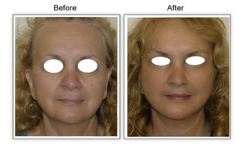 facelift cost honolulu hawaii