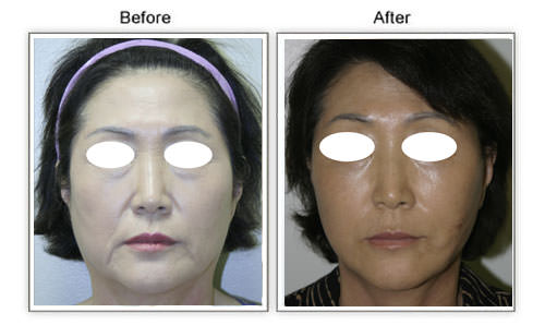 facelift conmbined with fat transfer