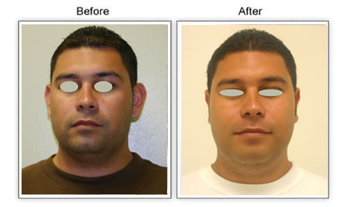 otoplasty honolulu hawaii