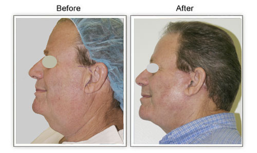 Facelift in men