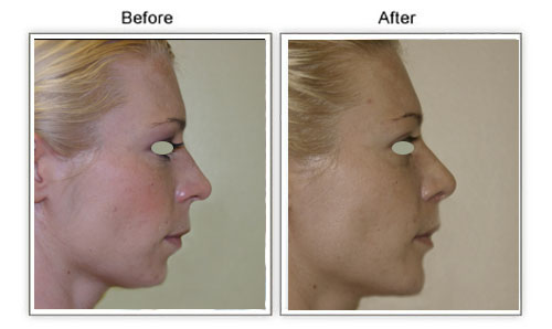 rhinoplasty_hawaii