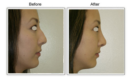 rhinoplasty_hump_removal